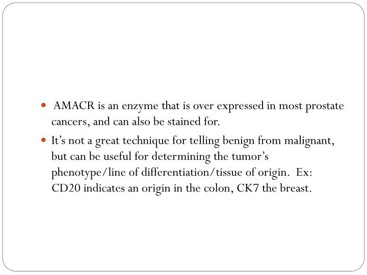 AMACR is an enzyme that is over expressed in most prostate cancers, and can also be stained for.