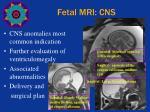 fetal mri cns