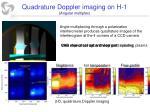 quadrature doppler imaging on h 1 angular multiplex