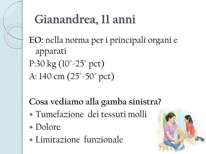 Gianandrea