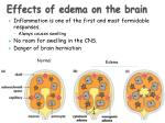 effects of edema on the brain