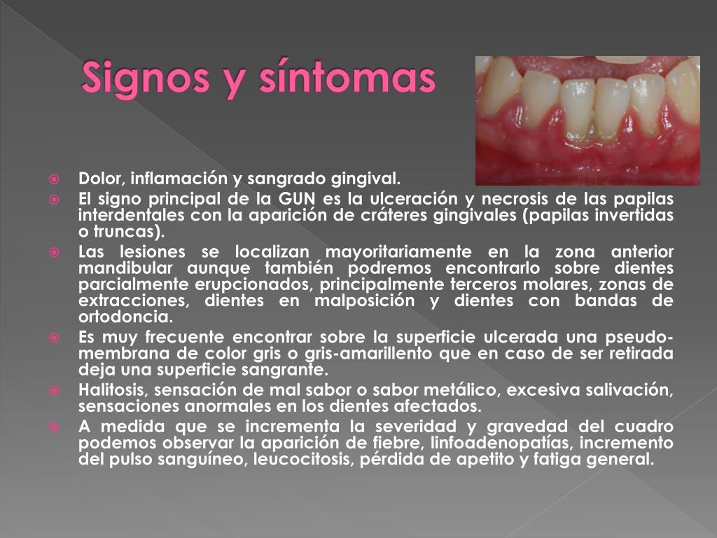 signos y sintomas gingivitis