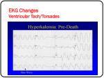 ekg changes ventricular tach torsades