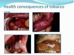 health consequences of tobacco use4