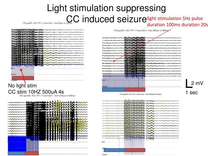 Light stimulation suppressing      CC induced seizure