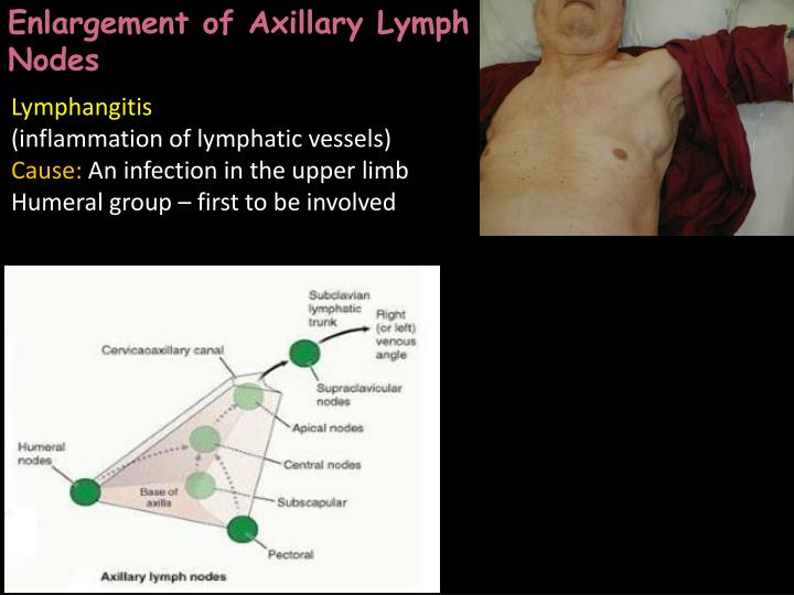 PPT - Clinical anatomy of the upper limb PowerPoint Presentation ...