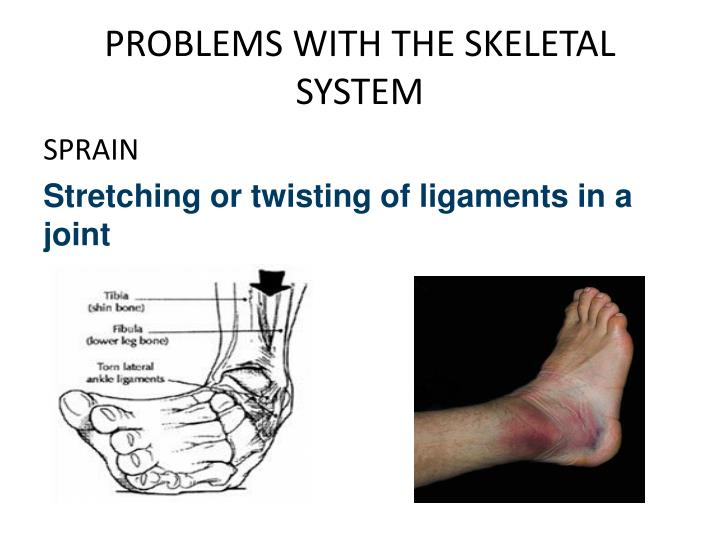 PROBLEMS WITH THE SKELETAL SYSTEM