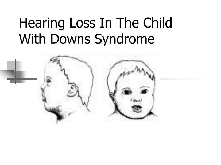hearing loss in the child with downs syndrome n.