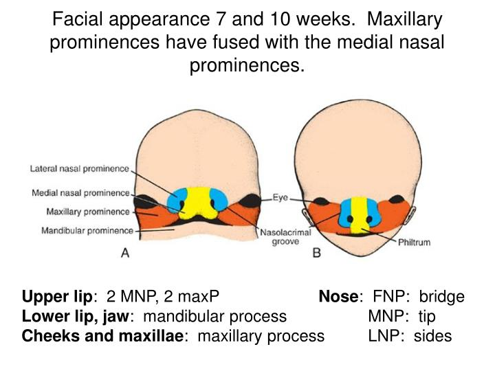 Facial appearance 7 and 10 weeks.  Maxillary prominences have fused with the medial nasal prominences.