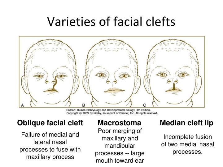 Varieties of facial clefts