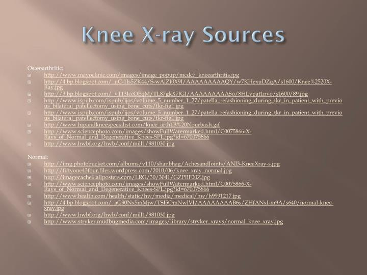 Knee X-ray Sources