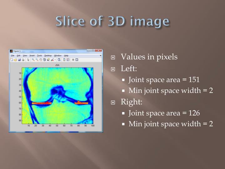 Slice of 3D image