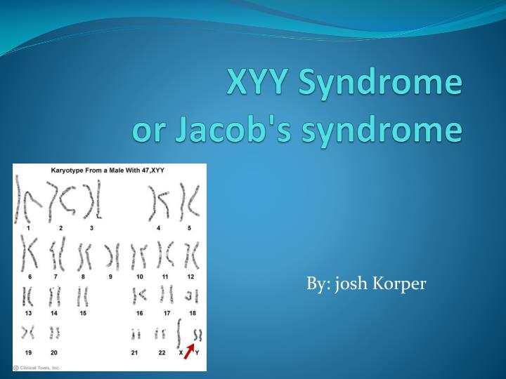 xyy syndrome jacob syndrome Most males are xy, males with jacob's syndrome called xyy males this drawing shows a person with jacob's syntom he is very tall, and he has big hands.