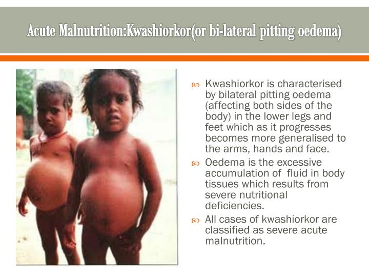 severe acute malnutrition essay Severe acute malnutrition contributes to 1 million child deaths every year using existing studies of case fatality rates in several countries, who has extrapolated mortality rates of children suffering from severe acute malnutritionthe mortality rates listed in the table at right reflect a.