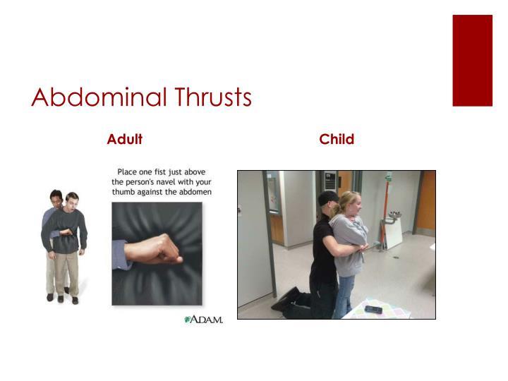 Abdominal Thrusts