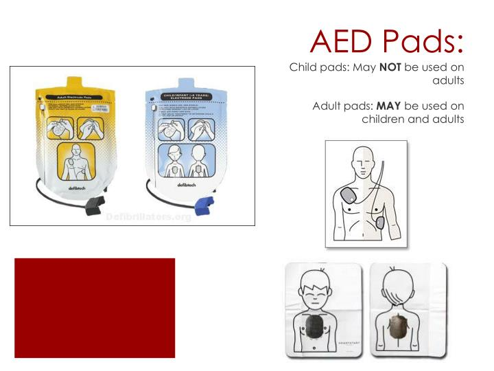 AED Pads: