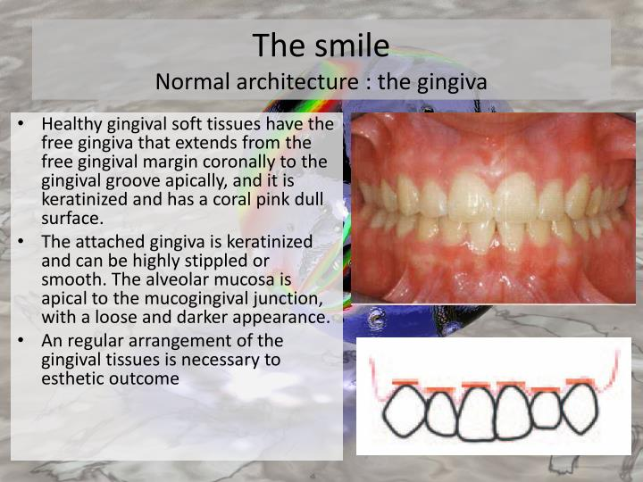Ppt Gummy Smiles Powerpoint Presentation Id 2151974