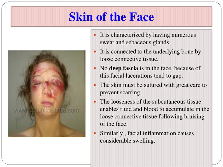 PPT - Clinical Anatomy of the Face PowerPoint Presentation - ID:2152864