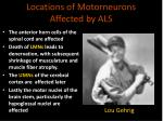 locations of motorneurons affected by als