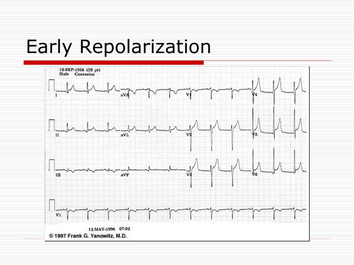 Early Repolarization