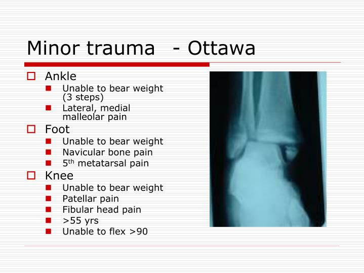 Minor trauma	- Ottawa
