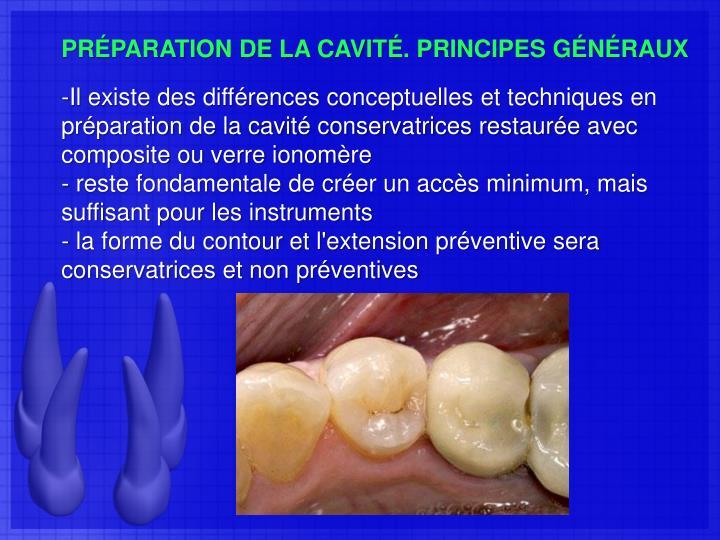 PRÉPARATION DE LA CAVITÉ. PRINCIPES GÉNÉRAUX