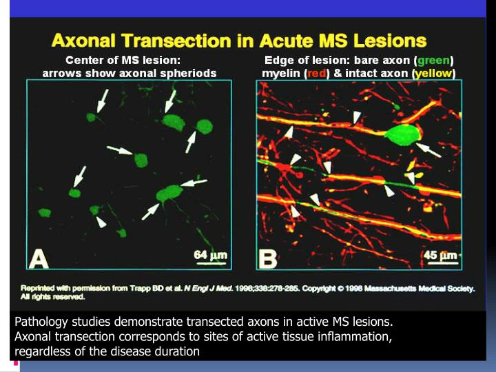 Pathology studies demonstrate transected axons in active MS lesions.
