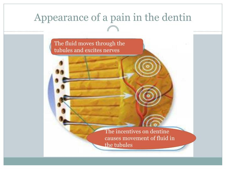 Appearance of a pain