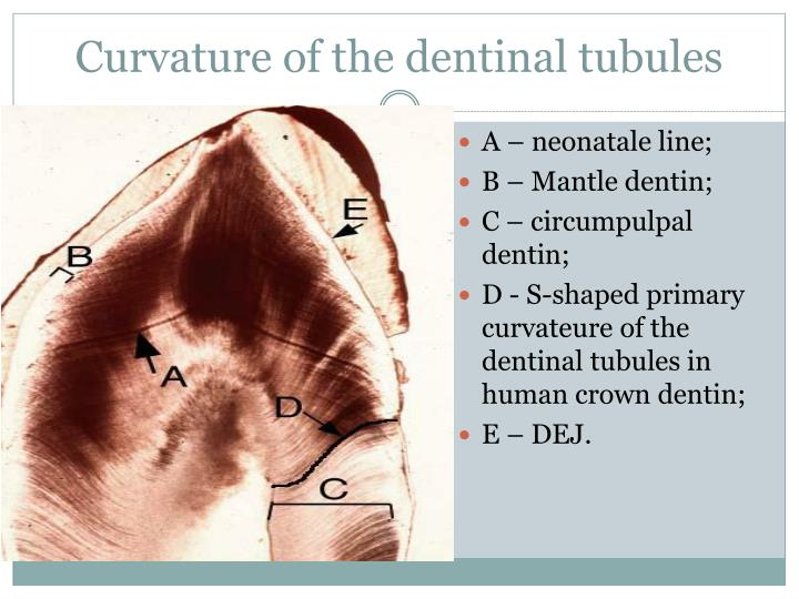 Curvature of the dentinal tubules