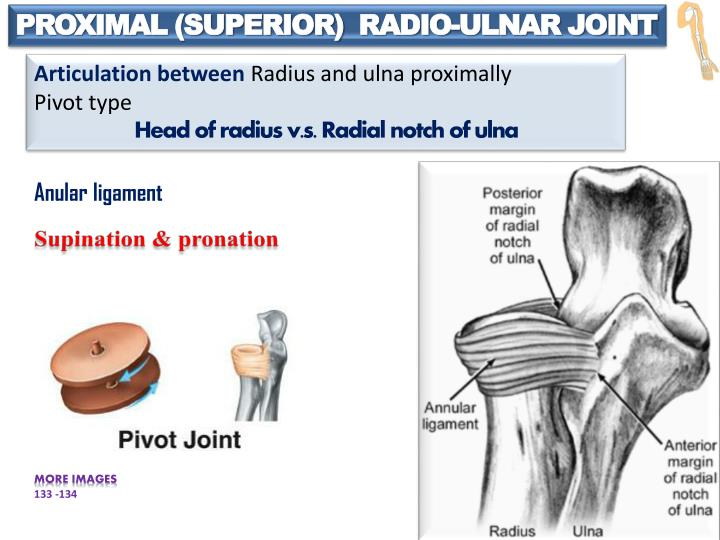 Ppt Joints Of The Upper Limb Powerpoint Presentation Id2172158