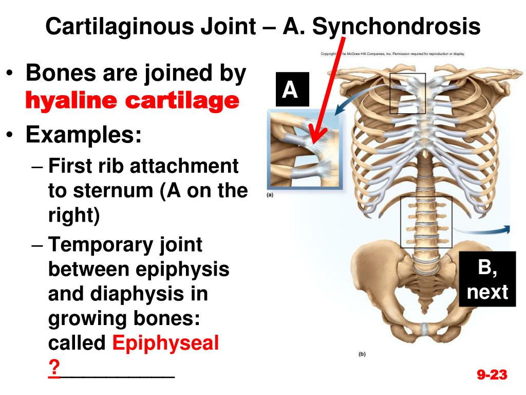 Ppt Chapter 9 Joints Powerpoint Presentation Free Download Id 2172415 Synchondrosis of ribs synchondrosis of ribs (/lung/congenital lung malformations/congenital abnormalities of chest/synchondrosis of ribs). ppt chapter 9 joints powerpoint