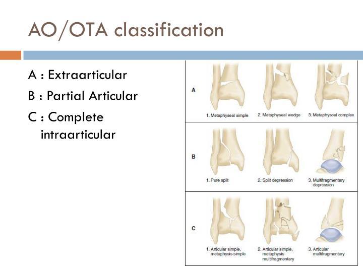 AO/OTA classification