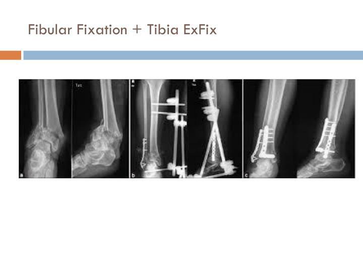 Fibular Fixation + Tibia ExFix