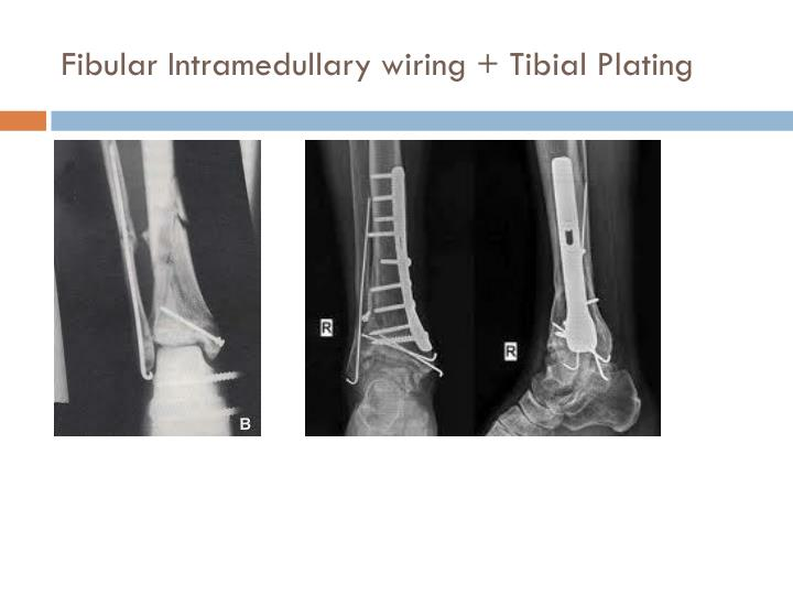 Fibular Intramedullary wiring + Tibial Plating