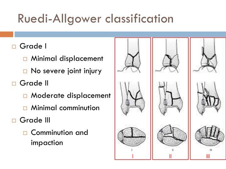 Ruedi-Allgower classification