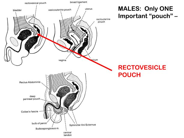 """MALES:  Only ONE Important """"pouch"""" –"""