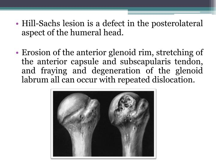 Ppt Shoulder Instability Powerpoint Presentation Id2176627