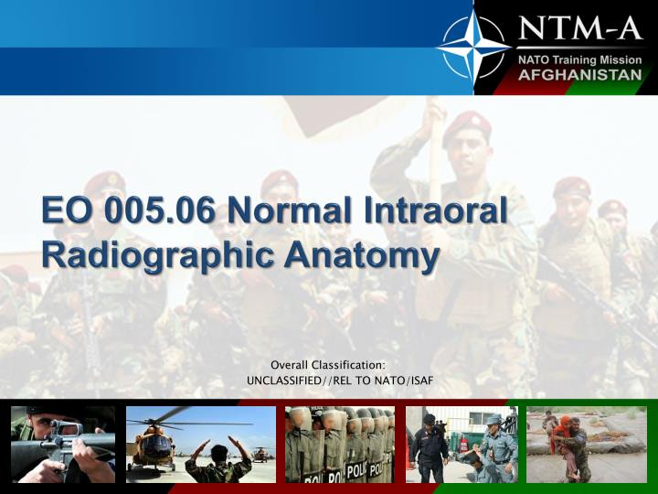 eo 005 06 normal intraoral radiographic anatomy n.