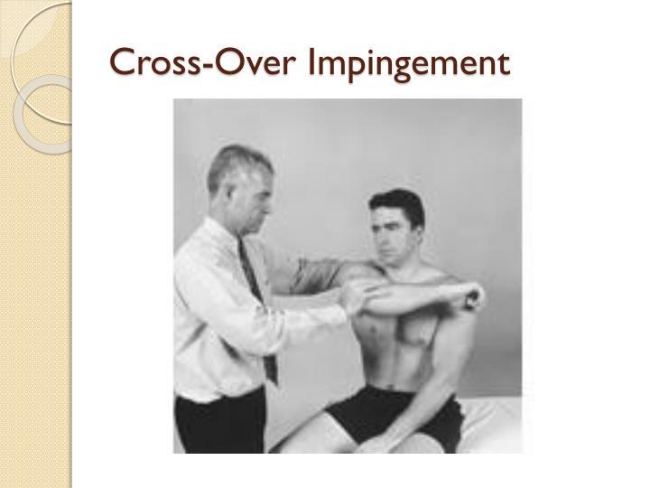Cross-Over Impingement
