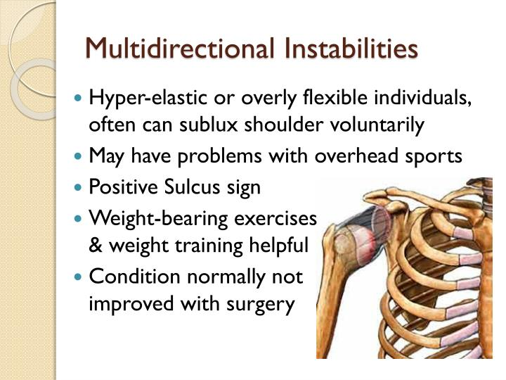Multidirectional Instabilities