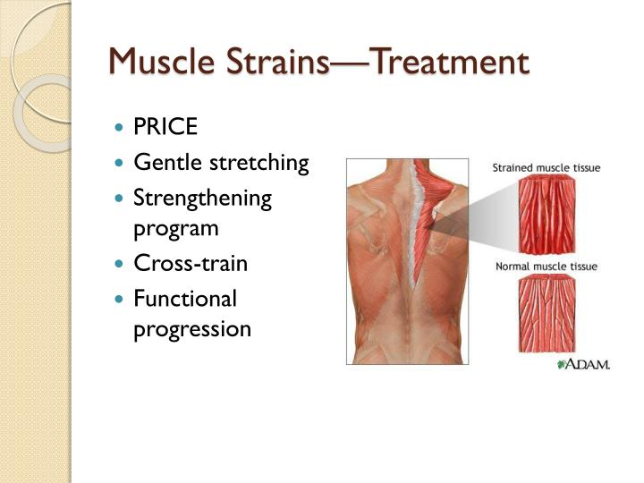 Muscle Strains—Treatment