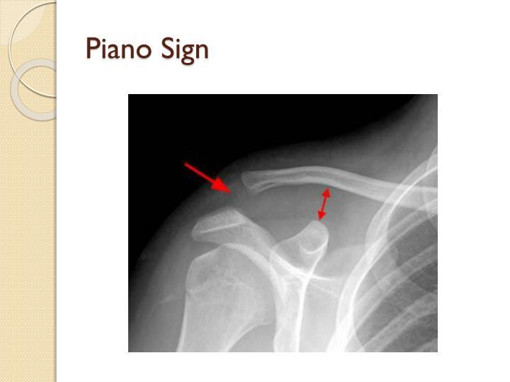 Piano Sign