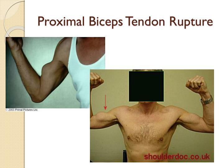 Proximal Biceps Tendon Rupture