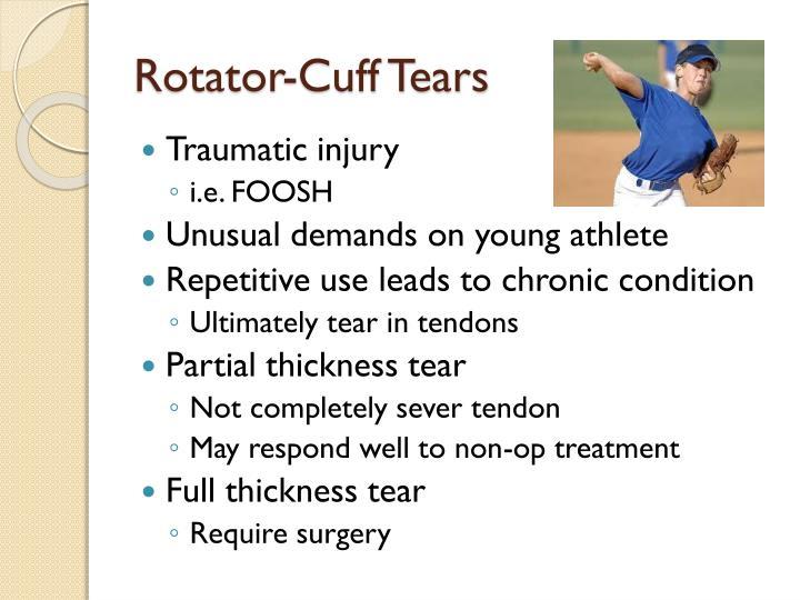 Rotator-Cuff Tears