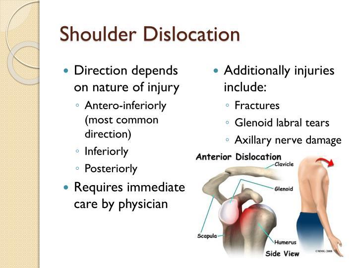 Shoulder Dislocation