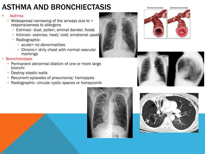 Asthma and Bronchiectasis