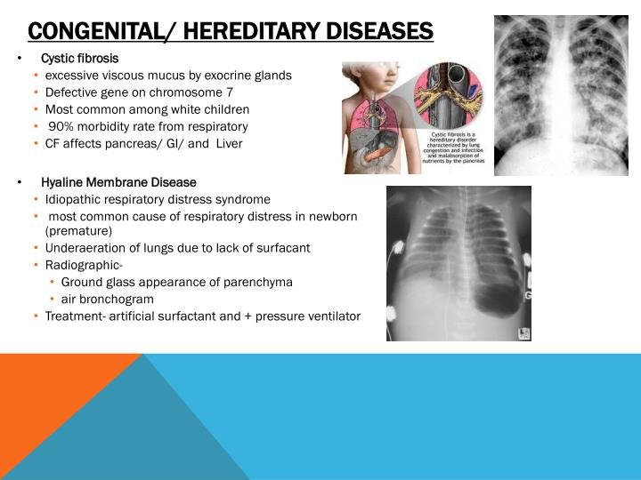 Congenital/ hereditary diseases