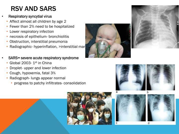 RSV and SARS