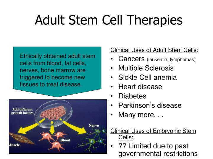 Adult Stem Cell Therapies