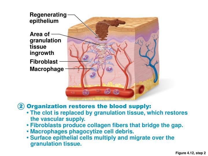 Regenerating
